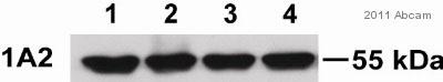 Western blot - Anti-Cytochrome P450 1A2  antibody [d15 (16VII F10F12)] (ab22717)