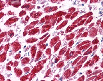 Immunohistochemistry (Formalin/PFA-fixed paraffin-embedded sections) - Anti-EAP30 antibody (ab22768)