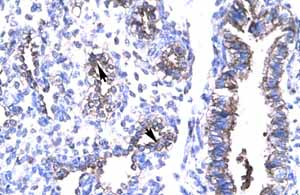 Immunohistochemistry (Formalin/PFA-fixed paraffin-embedded sections)-Anti-TIP30 antibody(ab22841)