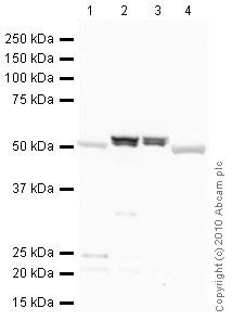 Western blot - ALDH1A1 antibody - Neuronal Marker (ab23375)