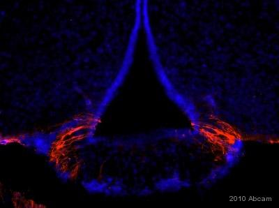 - ALDH1A1 antibody - Neuronal Marker (ab23375)