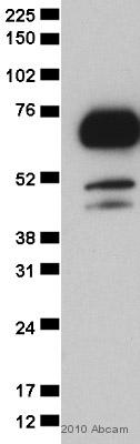 Western blot - TLS/FUS antibody (ab23439)