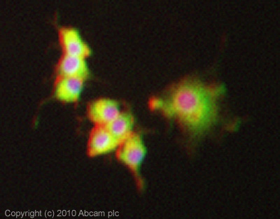 Immunocytochemistry/ Immunofluorescence-PKC antibody [M110](ab23511)