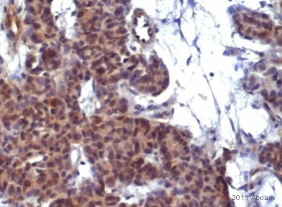 Immunohistochemistry (Formalin/PFA-fixed paraffin-embedded sections) - PKC alpha (phospho S657 + Y658) antibody (ab23513)