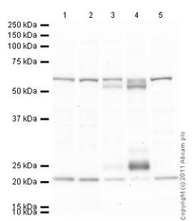 Western blot - Anti-hnRNP K antibody [F45 P9 C7] (ab23644)