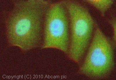 Immunocytochemistry/ Immunofluorescence - FOXO3A antibody (ab23683)