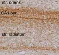 Immunohistochemistry (Frozen sections) - Cannabinoid Receptor I antibody (ab23703)