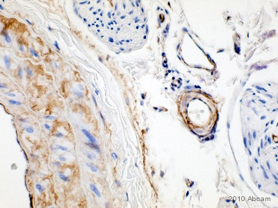 Immunohistochemistry (Formalin/PFA-fixed paraffin-embedded sections) - Fibronectin antibody (ab23751)
