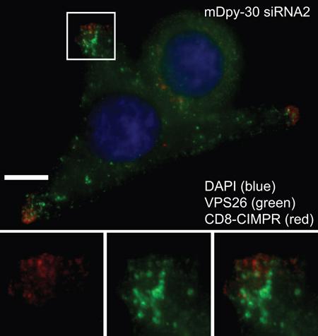 Immunocytochemistry/ Immunofluorescence - Anti-VPS26 antibody (ab23892)