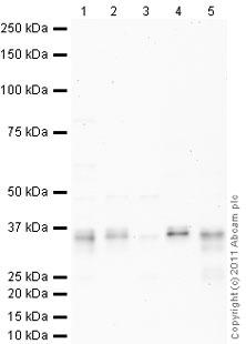 Western blot - Anti-Apolipoprotein E  antibody (Biotin) (ab24274)