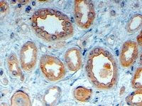 Immunohistochemistry (Formalin/PFA-fixed paraffin-embedded sections) - LRP6 antibody (ab24386)