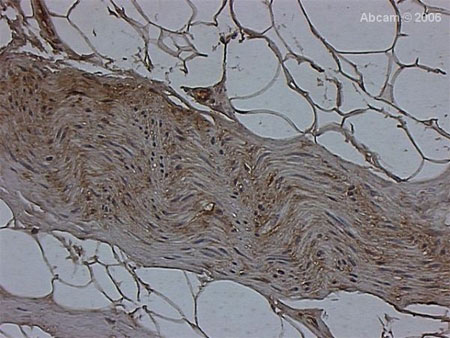 Immunohistochemistry (Formalin/PFA-fixed paraffin-embedded sections) - Anti-FKBP38 antibody (ab24450)