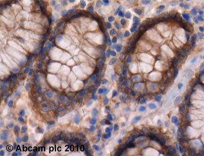 Immunohistochemistry (Formalin/PFA-fixed paraffin-embedded sections) - Anti-Syndecan 4 antibody (ab24511)