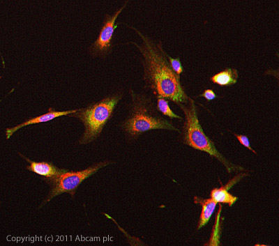 Immunocytochemistry/ Immunofluorescence - Anti-Guanylyl Cyclase beta 1 antibody (ab24824)