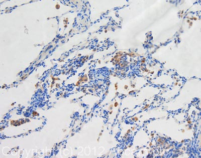 Immunohistochemistry (Formalin/PFA-fixed paraffin-embedded sections) - Anti-LAMP1 antibody [1D4B] - BSA and Azide free (ab25245)