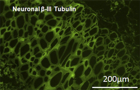Immunohistochemistry (Frozen sections) - Anti-beta III Tubulin antibody [TU-20] (FITC) (ab25770)