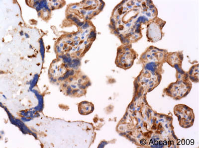 Immunohistochemistry (Formalin/PFA-fixed paraffin-embedded sections)-beta Actin antibody(ab25894)