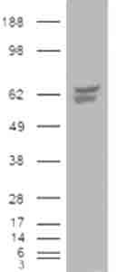 Western blot - CACNB4 antibody (ab26060)