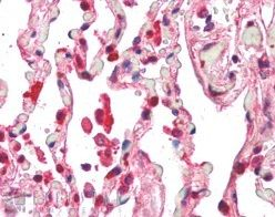 Immunohistochemistry (Formalin/PFA-fixed paraffin-embedded sections) - Centaurin beta 2 antibody (ab26070)