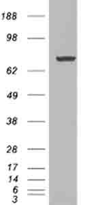Western blot - PADI4 / PAD4 antibody (ab26071)