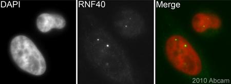 Immunocytochemistry/ Immunofluorescence - RNF40 antibody (ab26082)
