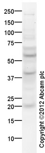 Western blot - Anti-PUMA antibody (ab26802)
