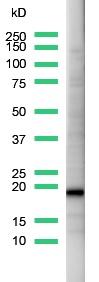 Western blot - CD3 epsilon antibody, prediluted (ab27434)