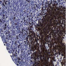 Immunohistochemistry (Formalin/PFA-fixed paraffin-embedded sections) - CD79a antibody [SP18], prediluted (ab27607)