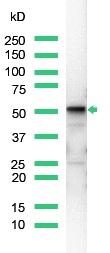 Western blot - Vimentin antibody [SP20], prediluted (ab27608)