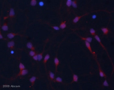 Immunocytochemistry/ Immunofluorescence - beta Catenin (phospho Y142) antibody (ab27798)