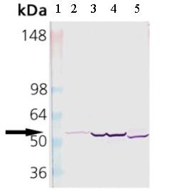 Western blot - Cytochrome P450 2E1 antibody (ab28146)