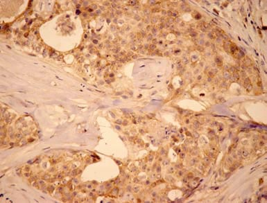 Immunohistochemistry (Formalin/PFA-fixed paraffin-embedded sections) - Anti-MCL1 antibody (ab28147)