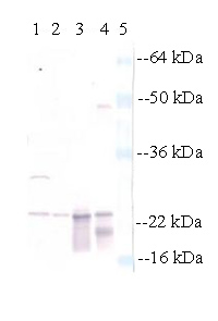 Western blot - alpha A + alpha B Crystallin antibody (ab28163)