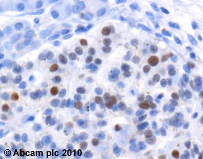 Immunohistochemistry (Formalin/PFA-fixed paraffin-embedded sections)-Cyclin D3 antibody [DCS22](ab28283)