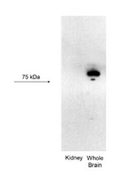 Western blot - Anti-KCNN3 antibody (ab28631)