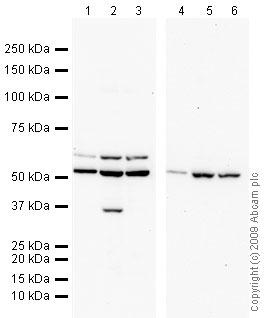 Western blot - Dcp2 antibody (ab28658)