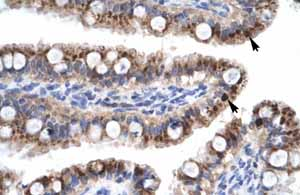 Immunohistochemistry (Formalin/PFA-fixed paraffin-embedded sections)-Anti-ZNF167 antibody(ab28681)
