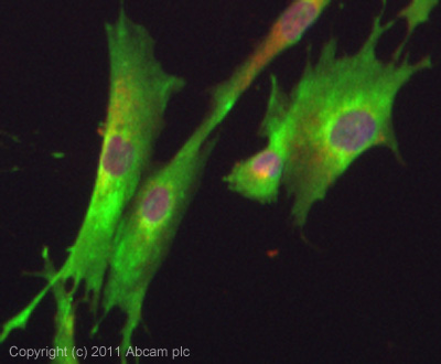 Immunocytochemistry/ Immunofluorescence - Anti-GHRHR antibody (ab28692)