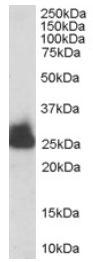 Western blot - Anti-Triosephosphate isomerase antibody (ab28760)