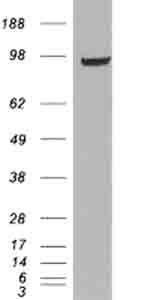 Western blot - PDE5A antibody (ab28761)