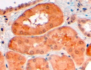 Immunohistochemistry (Formalin/PFA-fixed paraffin-embedded sections) - Anti-PCSK9 antibody (ab28770)