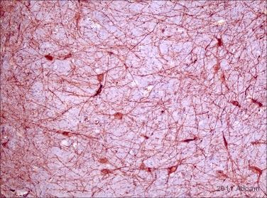 Immunohistochemistry (Formalin/PFA-fixed paraffin-embedded sections) - p75 NGF Receptor antibody [NGFR5] (ab3125)