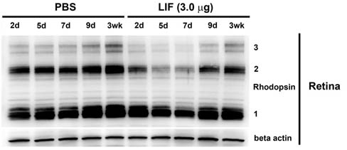 Western blot - Anti-Rhodopsin antibody [RET-P1] (ab3267)