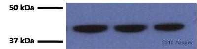 Western blot - Actin antibody [ACTN05 (C4)] (ab3280)