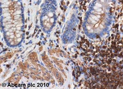 Immunohistochemistry (Formalin/PFA-fixed paraffin-embedded sections) - Actin antibody [ACTN05 (C4)] (ab3280)
