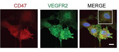 Immunocytochemistry/ Immunofluorescence - CD47 antibody [B6H12.2] (ab3283)
