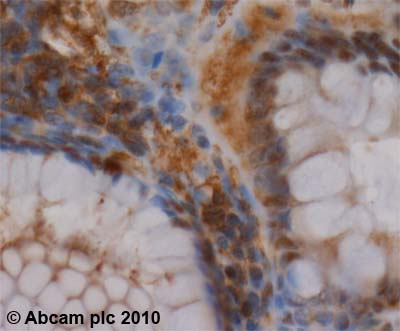 Immunohistochemistry (Formalin/PFA-fixed paraffin-embedded sections) - Proteasome 20S C2 antibody (ab3325)