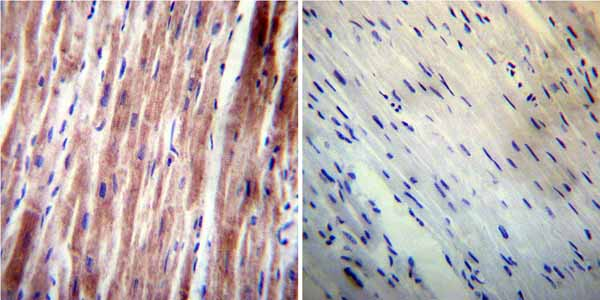 Immunohistochemistry (Formalin/PFA-fixed paraffin-embedded sections) - Anti-VAMP4 antibody (ab3348)