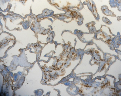 Immunohistochemistry (Frozen sections) - Anti-Folate Binding Protein antibody [LK26] (ab3361)
