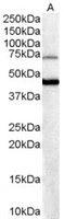 Western blot - FOXG1 antibody (ab3394)